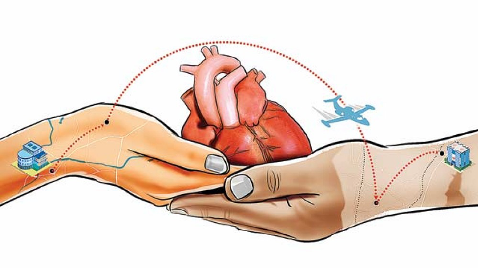 after-heart-transplantation-surgery