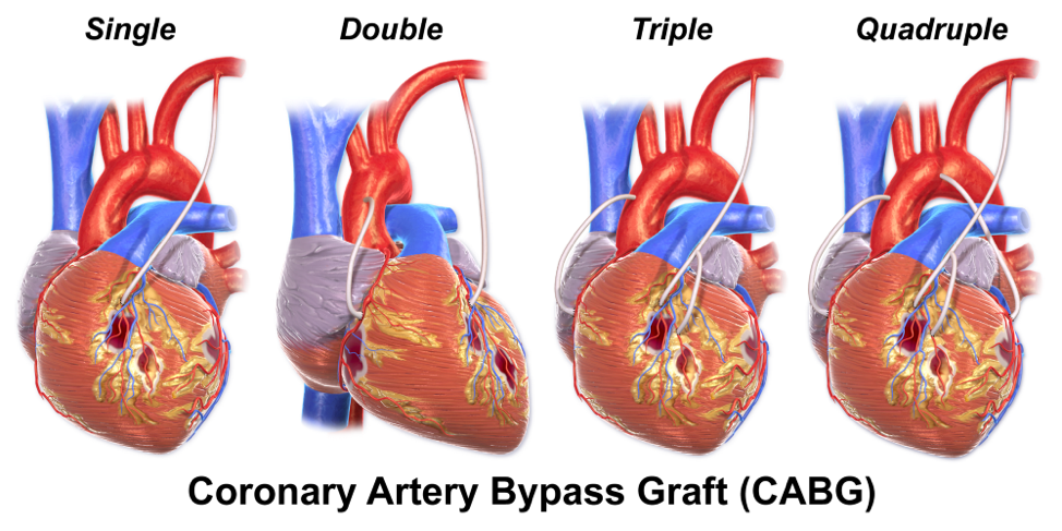 coronary-artery-bypass-graft